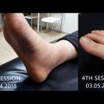 Naomi_twisted ankle yapchankor progress 2018
