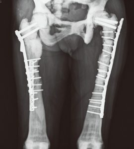 Thigh bone fracture surgery recovery