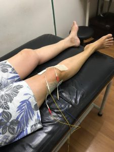 Electro-stimulation with a TENS machine